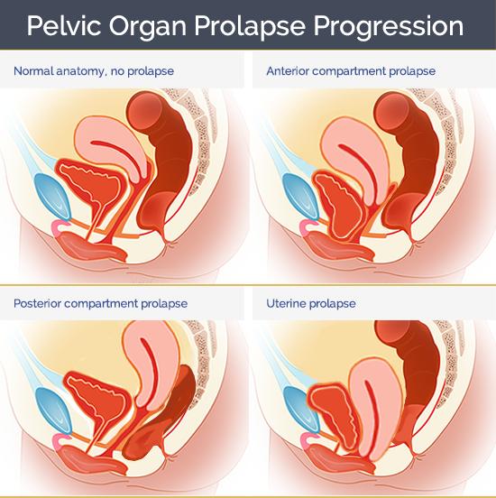 Pelvic Organ Prolapse Star Clinic